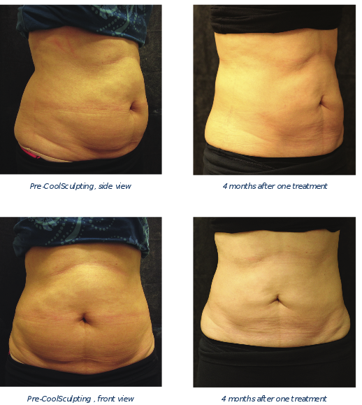 CoolSculpting Twin Cities & Minneapolis | Dermatology ...