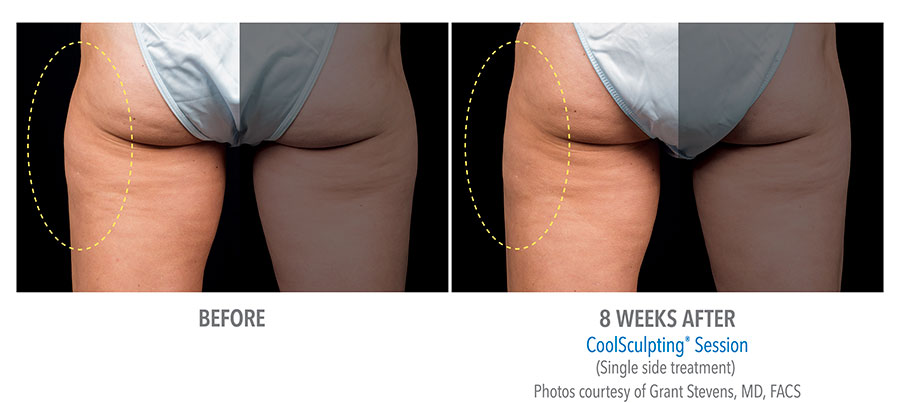 Coolsculpting Now Available For Thighs Dermatology