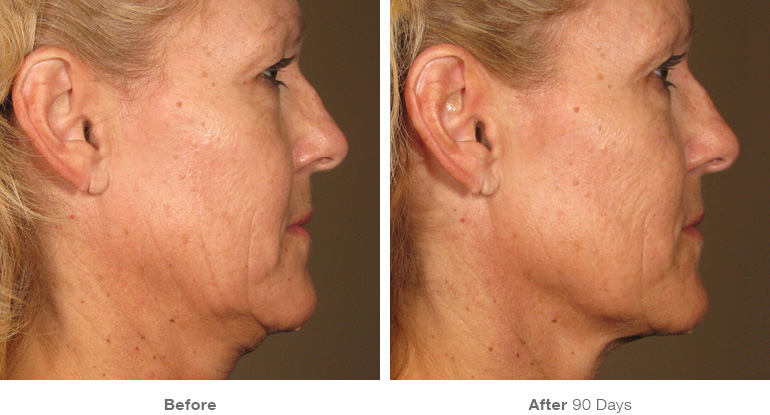 ultherapy-chest