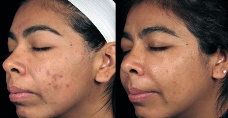 SilkPeel Before and After