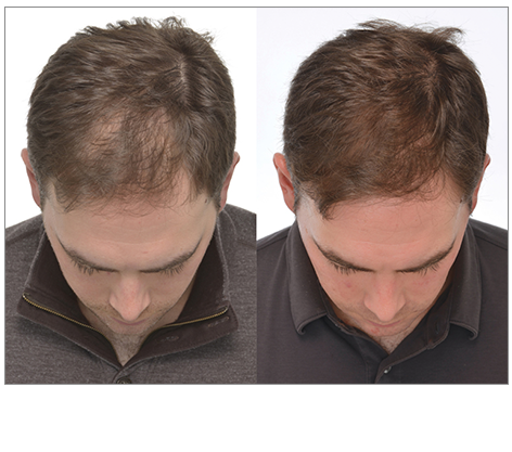Clinically Proven Hair Growth with iGrow Hair Growth System