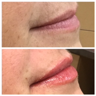 Liptober's in Full Swing – Lip Filler Special Offer